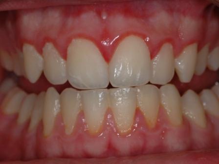 2b-gingivitis.jpg