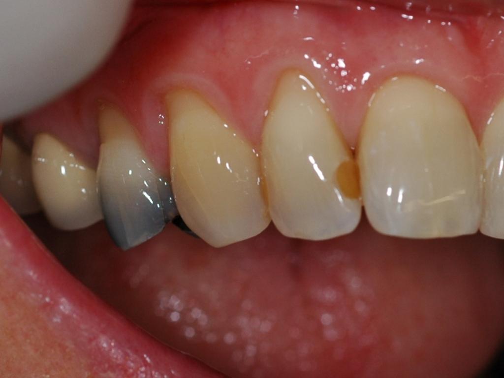 dental filling front teeth - photo #9