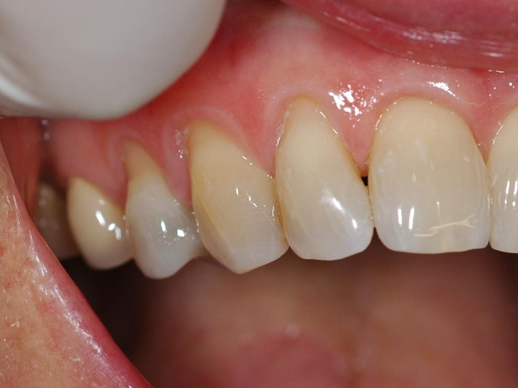 dental filling front teeth-#16