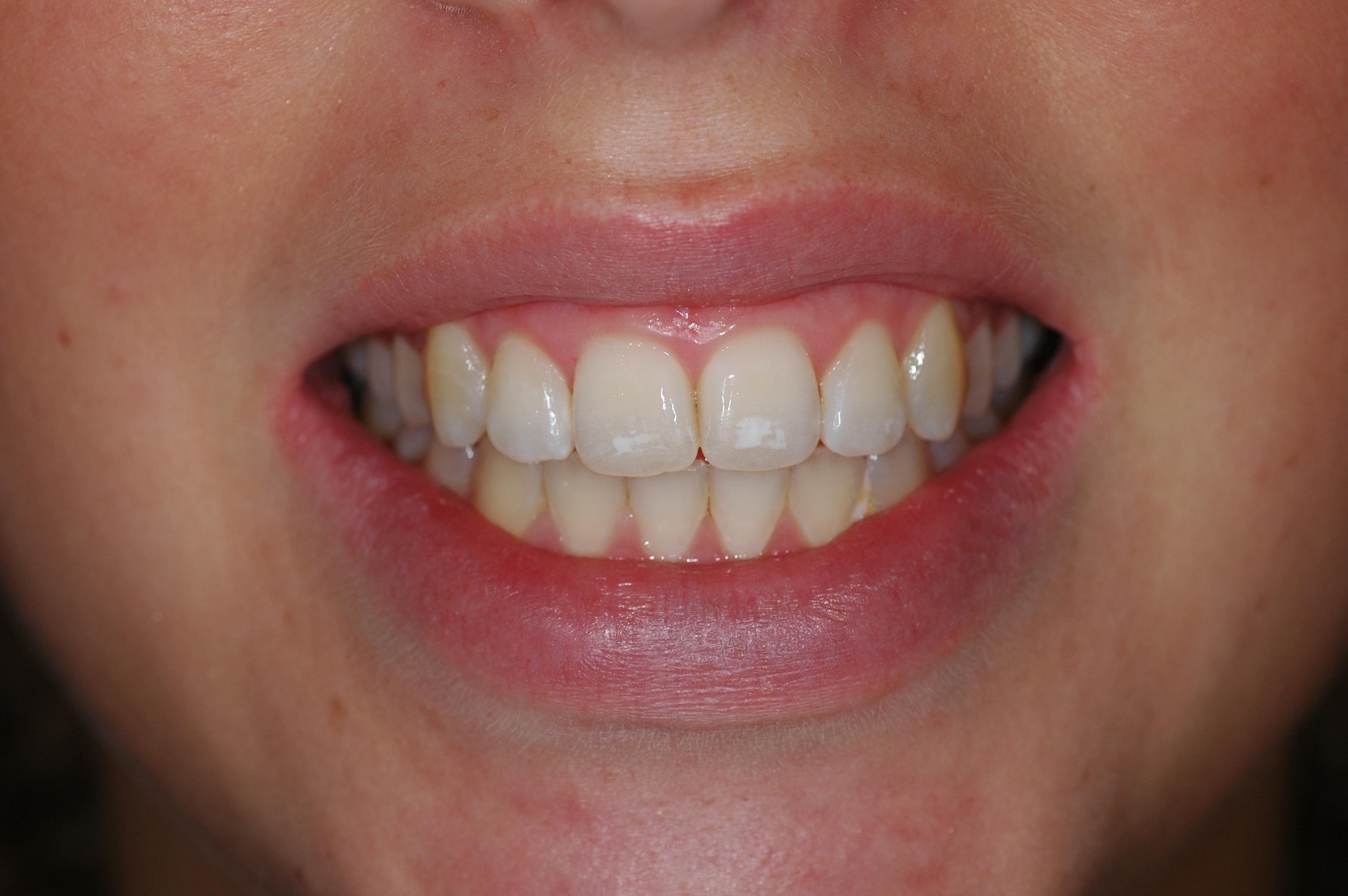 Myteethnvd s Weblog Dentistry explained