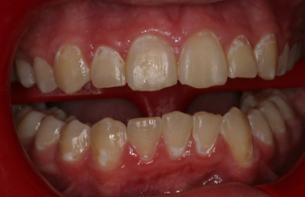What Causes White Spots on Baby Teeth Colgate