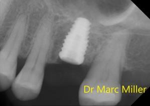 Implantx